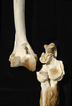 Panther knee joint