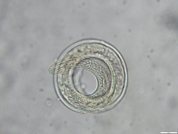 rat lungworm larvae