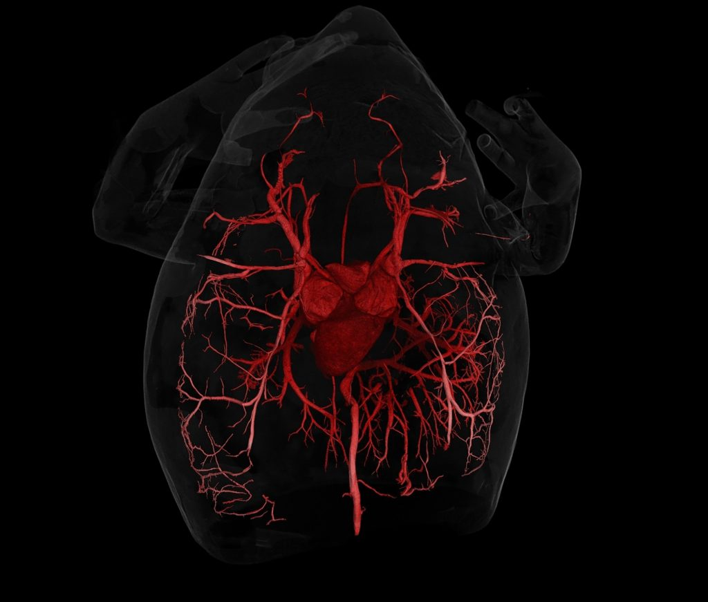 CT scan of frog circulatory system