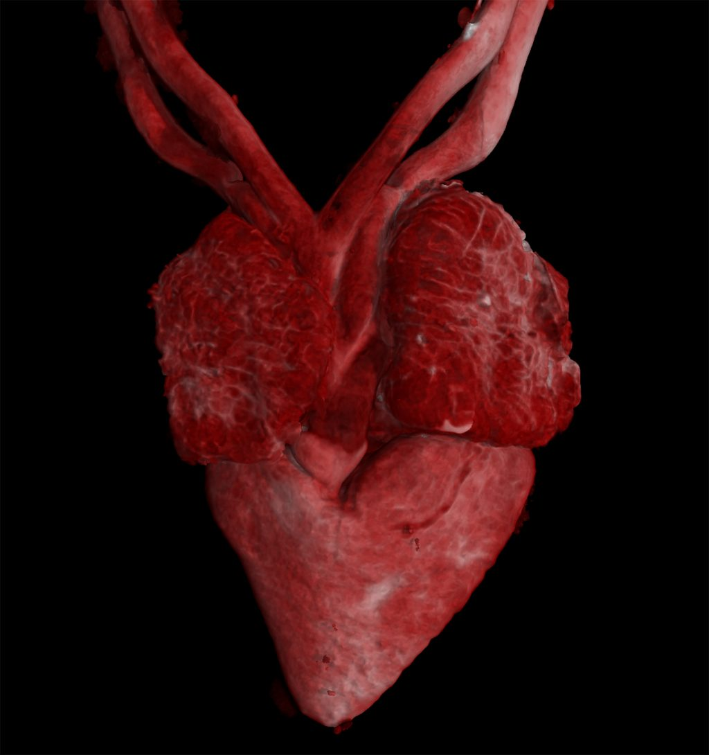 contrast-enhanced scan of heart