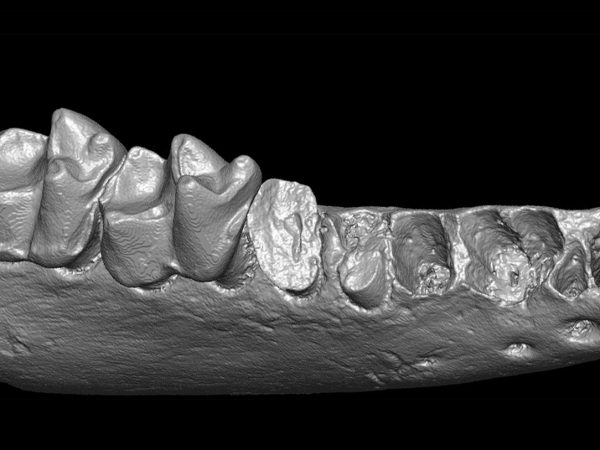 3D scan of a jaw