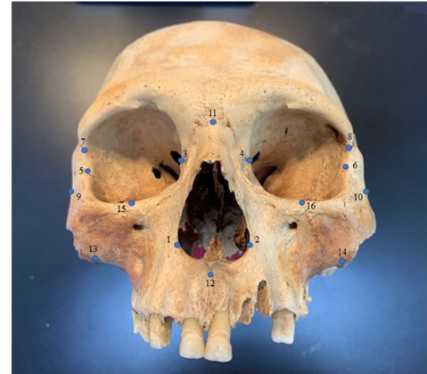 skull with blue dots