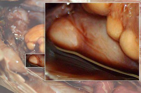 Close up: right nidamental gland.
