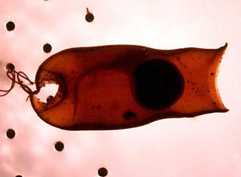 Swell shark egg case with developing embryo. Photo © John White