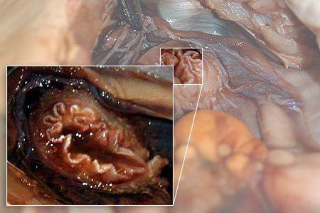 Close up: esophagus.